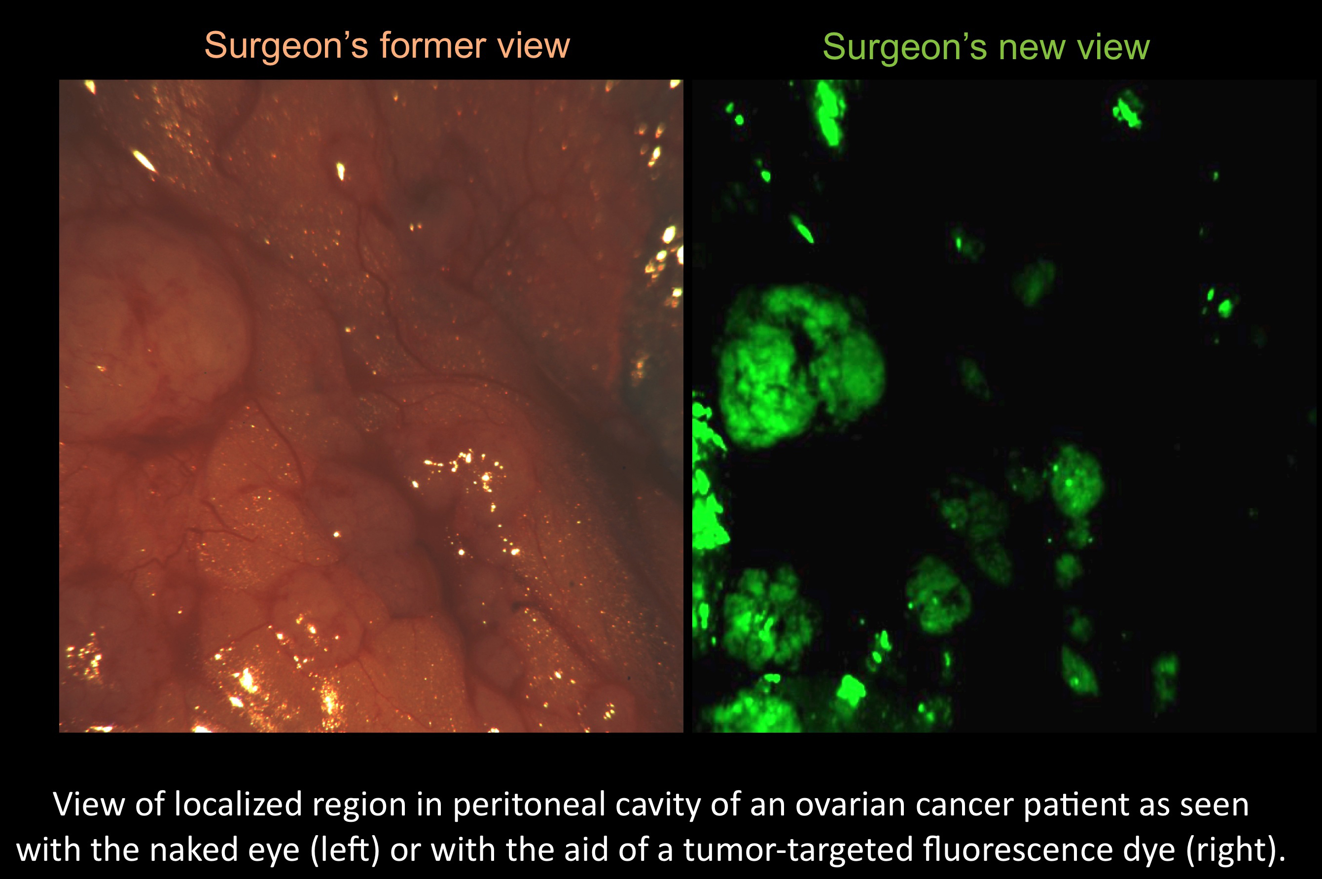 Fluorescent Dye Lights Up Cancer Cells Making Surgery More