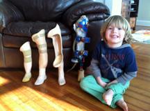 Lucas Resch prosthetic leg