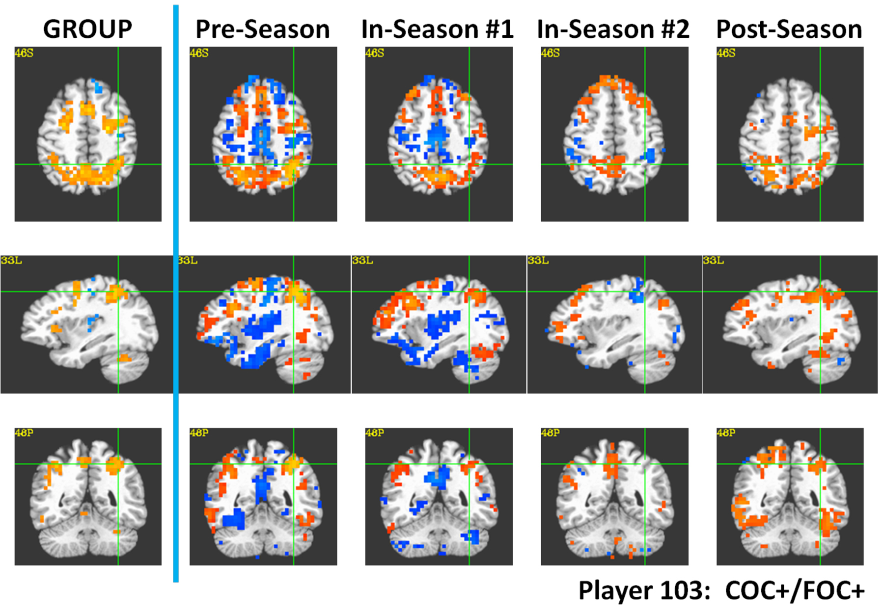 Repeated Head Hits Not Just Concussions >> Football Findings Suggest Concussions Caused By Series Of Hits
