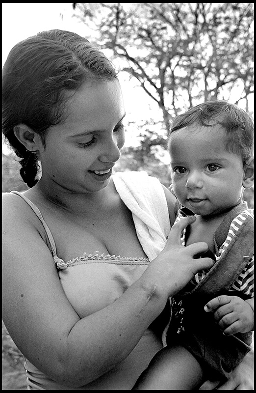 Thalidomide pregnant