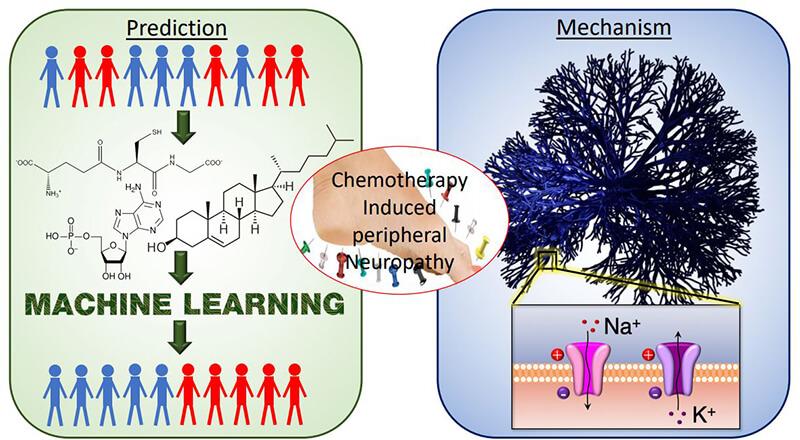 neuropathy schematic