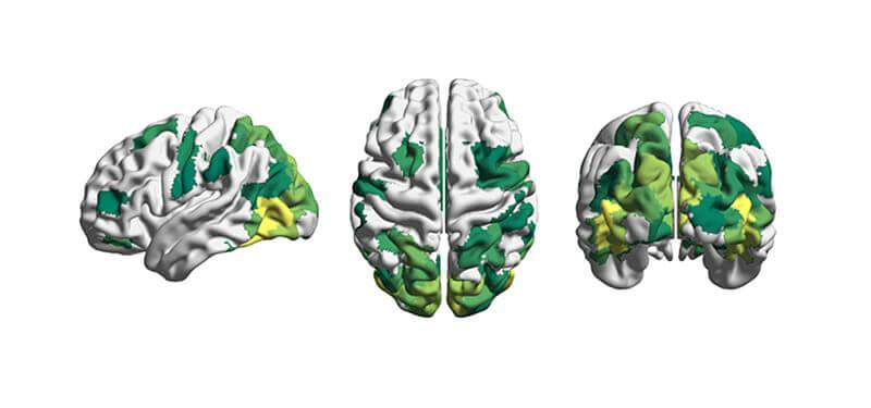 brain-reconfiguration