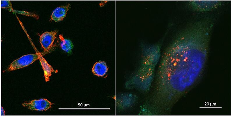 chopra-biomarkers